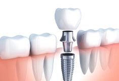 diagram of dental implant, abutment, and crown
