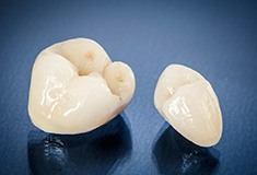 Tooth-colored dental crowns prior to placement