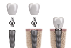 Digital image of an implant, abutment, and crown