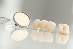 Dental crown and fixed bridge restoration before placement