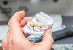 Traditional fixed bridge tooth replacement prosthetic