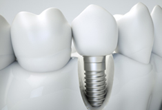 Animation of single tooth dental implant supported crowns