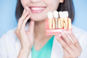 holding dental implant