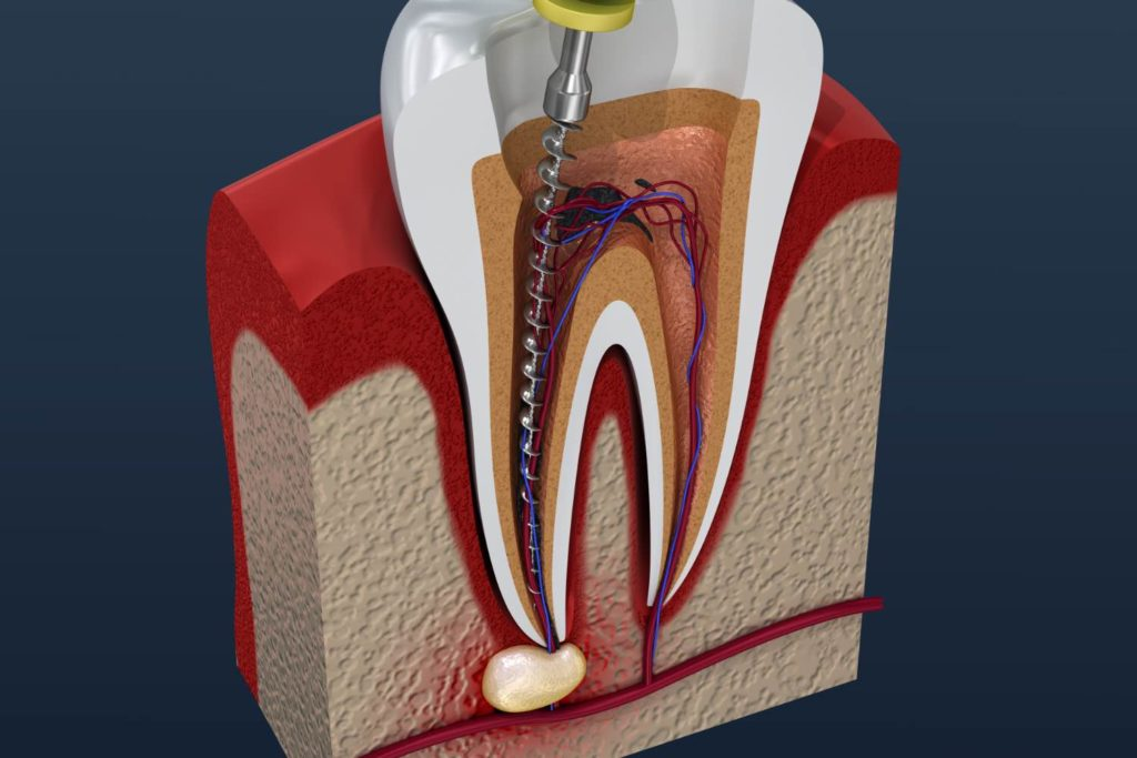 Illustration of a root canal from a dentist